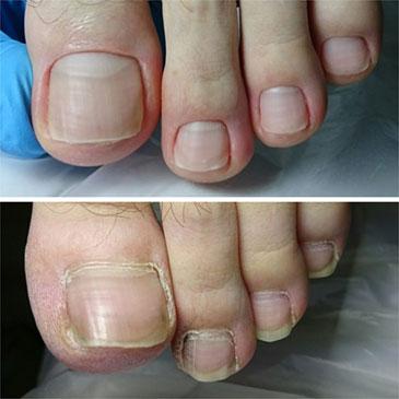 Педикюр до и после фото ногти
