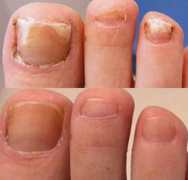 Картинки по запросу лечение грибка ногтя лазером